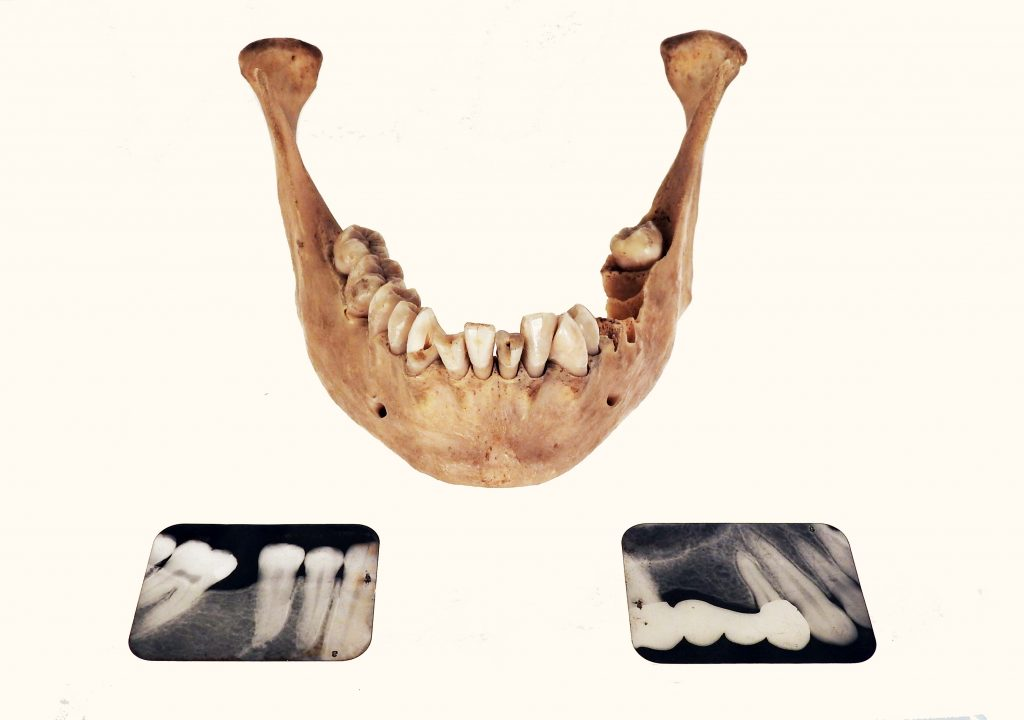 Bessie Bouton's Dental X-Rays, ca. 1900. Jawbone of Bessie Bouton, 1904. Generously Donated by Oren Boling.